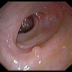 Micro-polipo nel colon