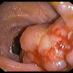 Tumore del retto