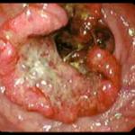Tumore ulcerato del retto